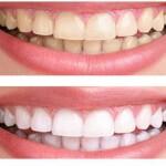 Kaip saugiai balinti dantis